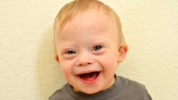 Baby Down Syndrome Face Boy Smiling 9